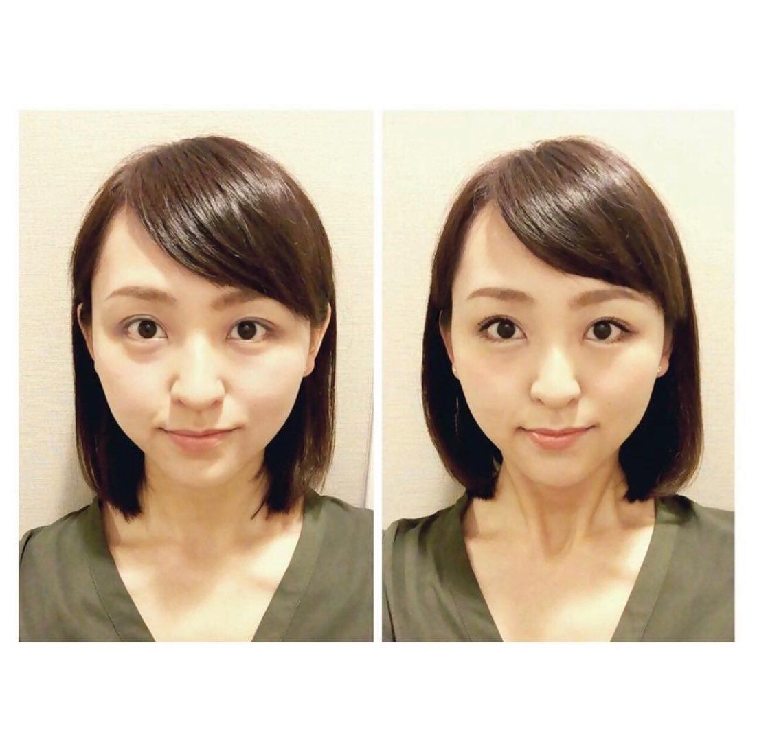 2016年ミスユニバースジャパンで第4位に輝いた「西村紗也香」様がご来店頂いた時に、当店をご紹介くださった時のお写真です。  ご自身でもセルフマッサージをされるとの事ですが、 それだと取りきれないむくみや歪みが取れた!!と大満足いただけました♪  #コルギ #ビューティー #小顔マッサージ #ダイエット #ブライダル #ウェディング #リフトアップ #リンパ #モデル
